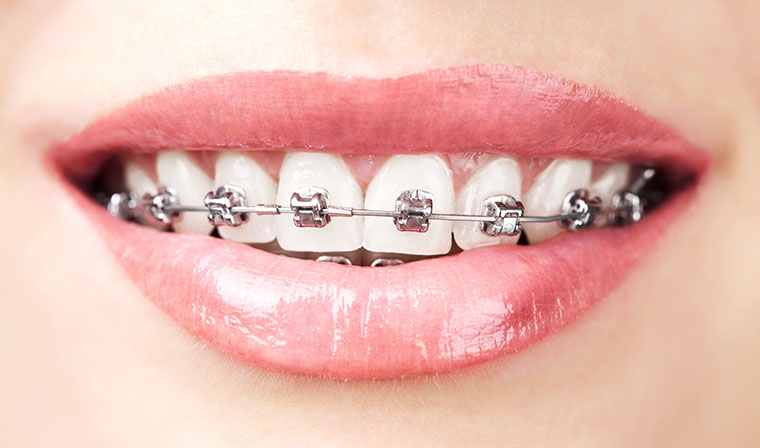 Delta Dental Care | Happiness Begins with a Smile